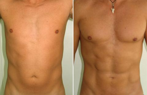 Stomach liposuction before and after men facebook post referring to