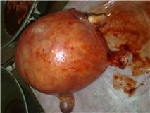 Fibroid uterus