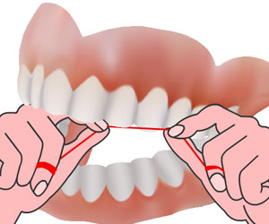 Flossing- Dental Floss