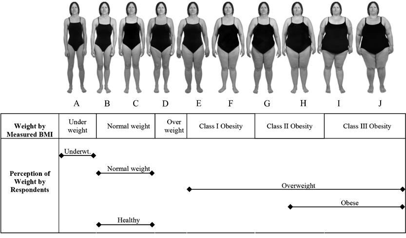 Journey of Obesity and Infertility